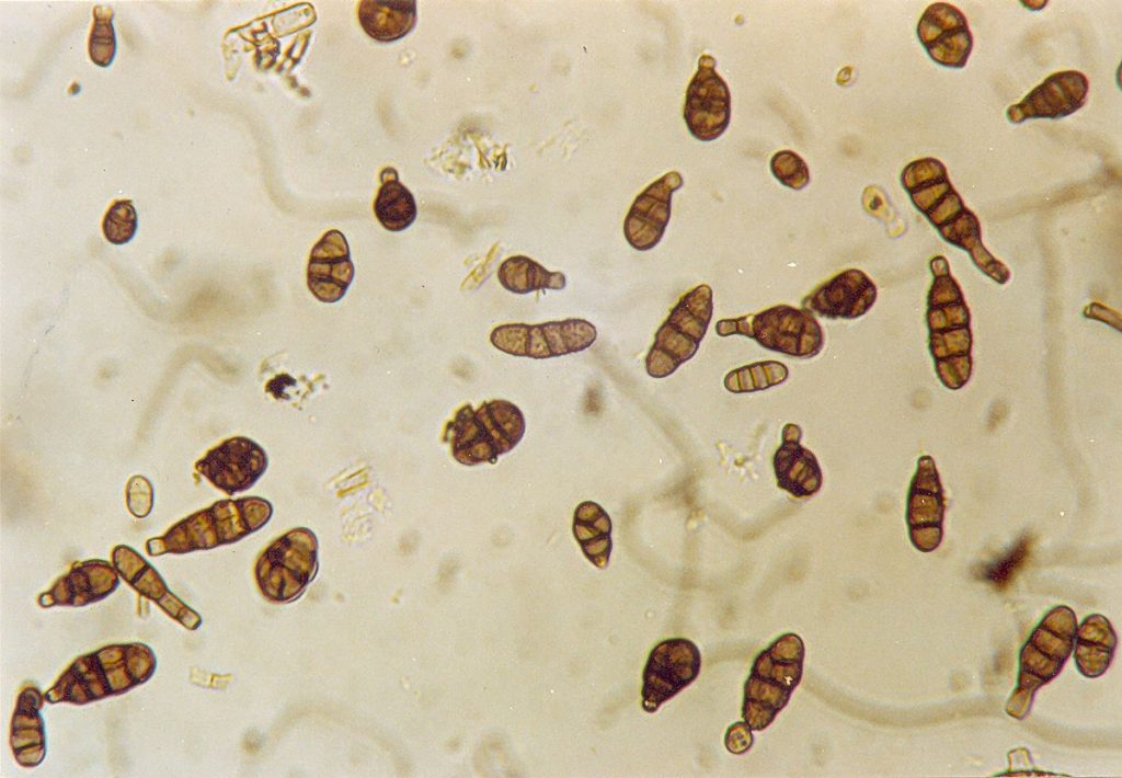 Conidia of the fungus Alternaria