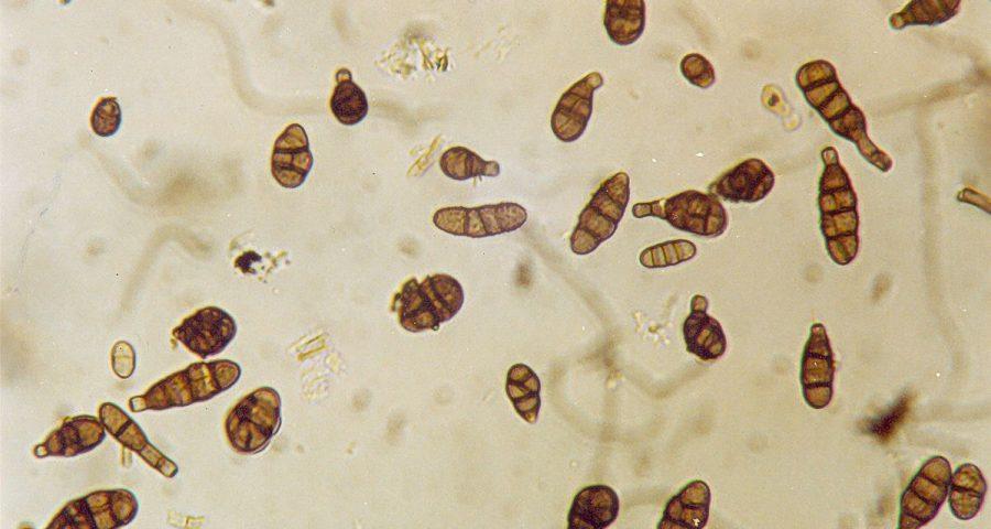 Conidia of the fungus Alternaria